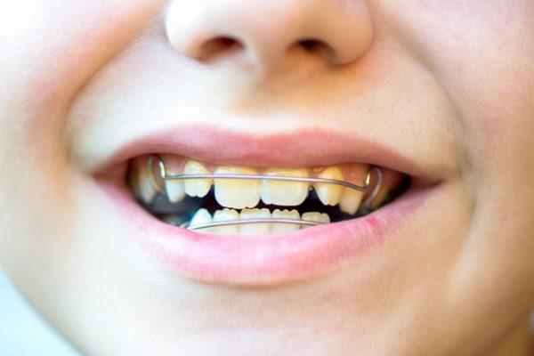 دندانپزشکی - ارتودنسی