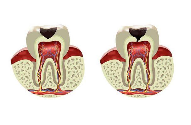 دندانپزشکی زهره- ریشه دندان