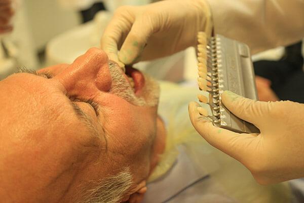 دندانپزشکی زهره- ونیر دندان